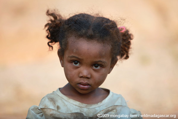 A Malagasy girl. While Madagascar faces widespread deforestation and erosion, it is estimated that 70 percent of its people suffer from malnutrition. The Rio+20 Summit is attempting to tackle both environmental degradation and poverty, but civil groups say the agreement falls far short of what is needed. Photo by: Rhett A. Butler.